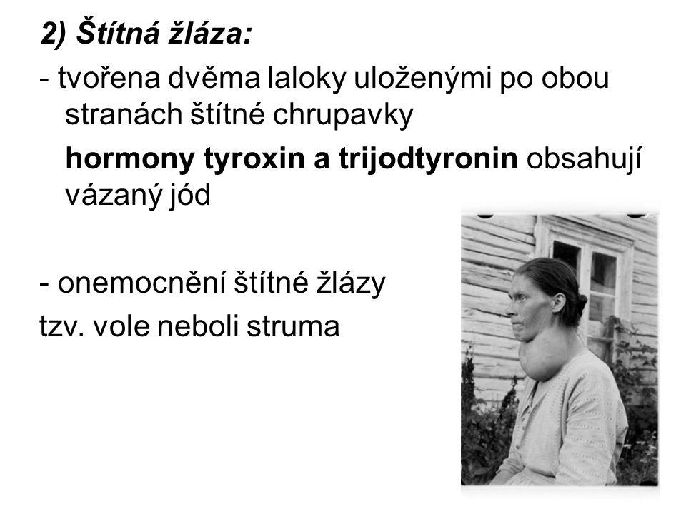2) Štítná žláza: - tvořena dvěma laloky uloženými po obou stranách štítné chrupavky hormony tyroxin a trijodtyronin obsahují vázaný jód - onemocnění štítné žlázy tzv.