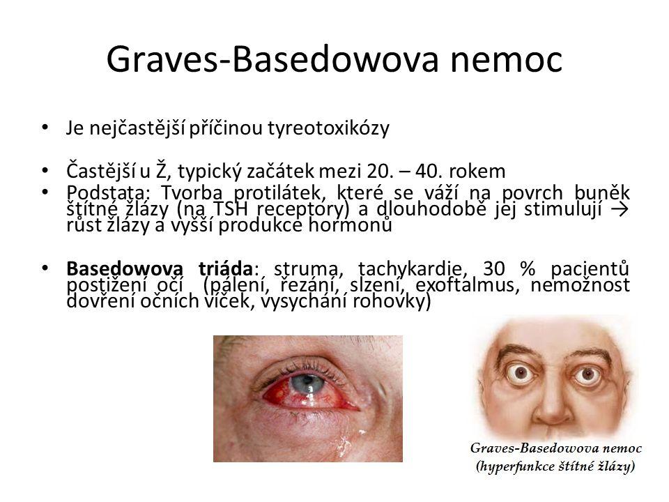 Graves-Basedowova nemoc Je nejčastější příčinou tyreotoxikózy Častější u Ž, typický začátek mezi 20. – 40. rokem Podstata: Tvorba protilátek, které se