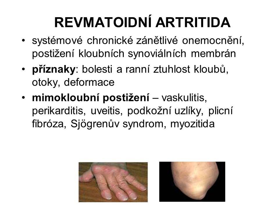 REVMATOIDNÍ ARTRITIDA systémové chronické zánětlivé onemocnění, postižení kloubních synoviálních membrán příznaky: bolesti a ranní ztuhlost kloubů, ot