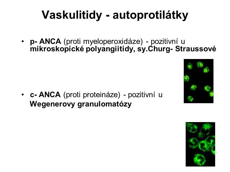 Vaskulitidy - autoprotilátky p- ANCA (proti myeloperoxidáze) - pozitivní u mikroskopické polyangiitidy, sy.Churg- Straussové c- ANCA (proti proteináze