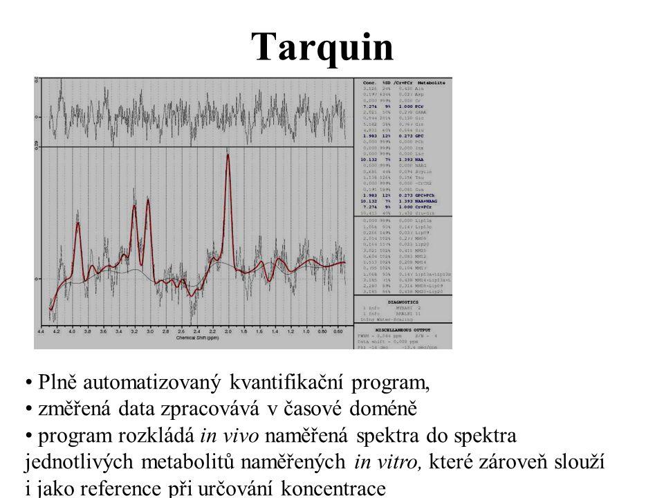 Tarquin Plně automatizovaný kvantifikační program, změřená data zpracovává v časové doméně program rozkládá in vivo naměřená spektra do spektra jednotlivých metabolitů naměřených in vitro, které zároveň slouží i jako reference při určování koncentrace