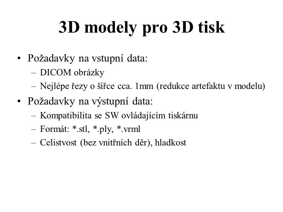 3D modely pro 3D tisk Požadavky na vstupní data: –DICOM obrázky –Nejlépe řezy o šířce cca. 1mm (redukce artefaktu v modelu) Požadavky na výstupní data