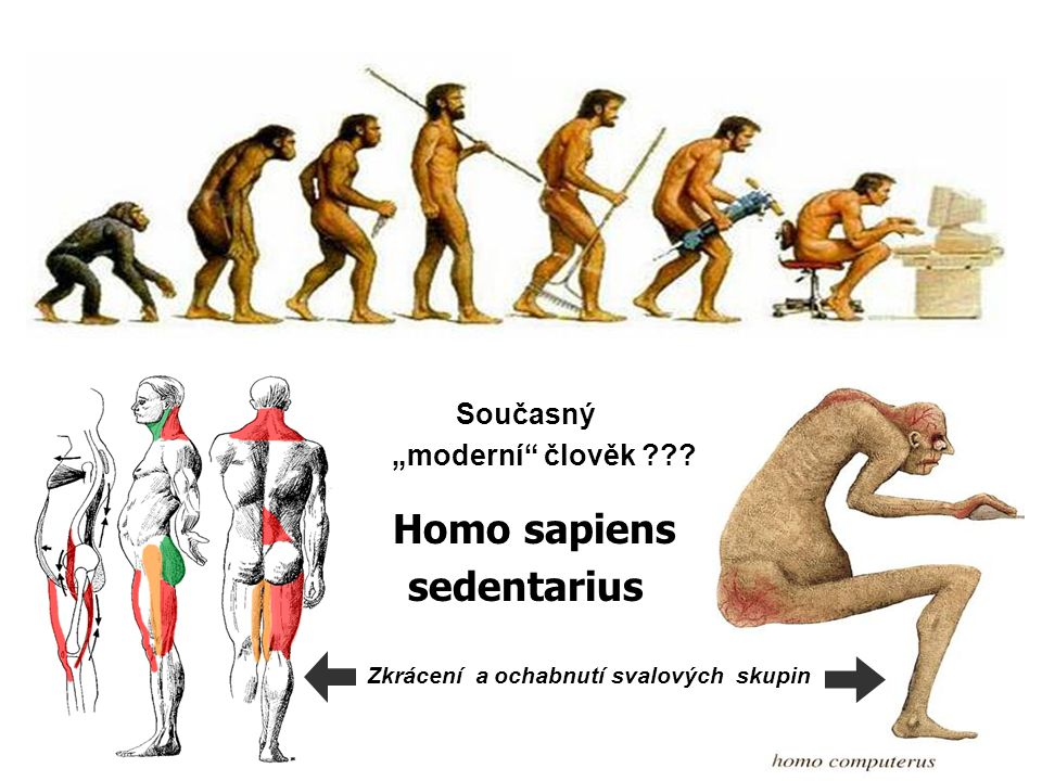 "Současný ""moderní"" člověk ??? Homo sapiens sedentarius Zkrácení a ochabnutí svalových skupin"