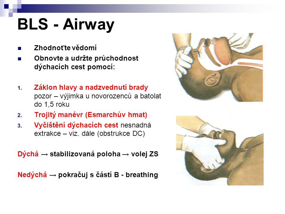 BLS - Airway Zhodnoťte vědomí Obnovte a udržte průchodnost dýchacích cest pomocí: 1. Záklon hlavy a nadzvednutí brady pozor – výjimka u novorozenců a