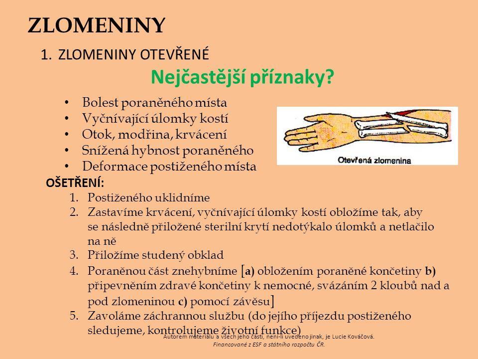 ZLOMENINY 1.ZLOMENINY OTEVŘENÉ Nejčastější příznaky.