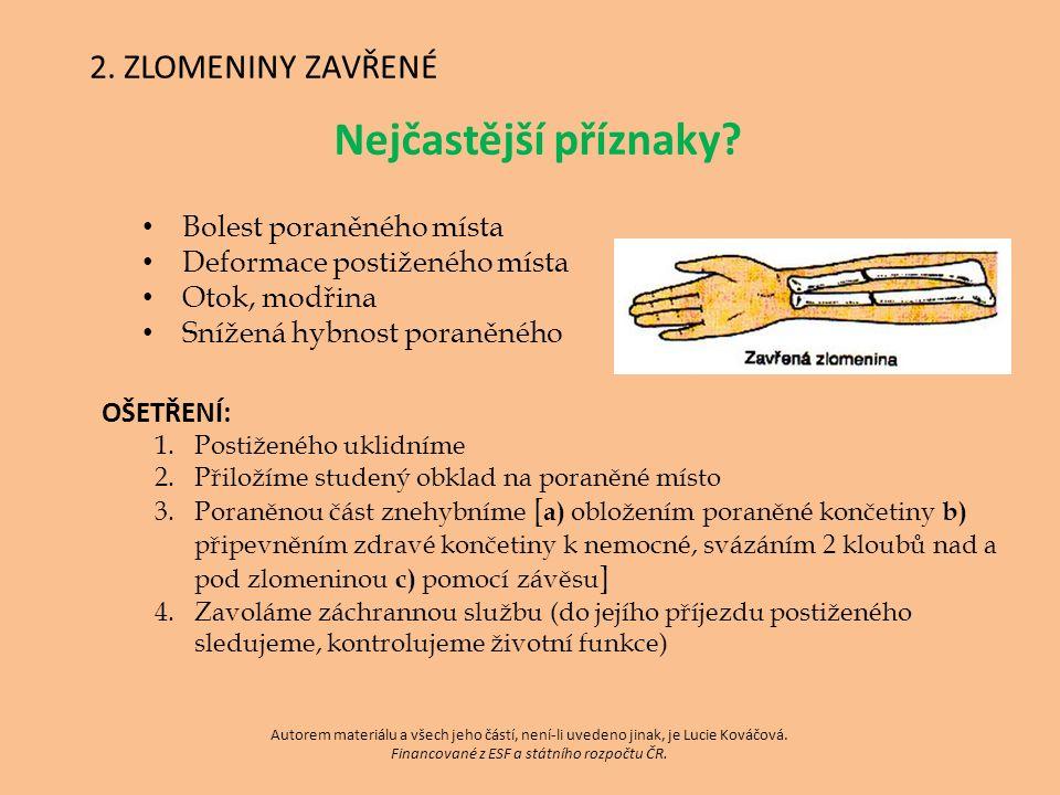 2. ZLOMENINY ZAVŘENÉ Nejčastější příznaky.