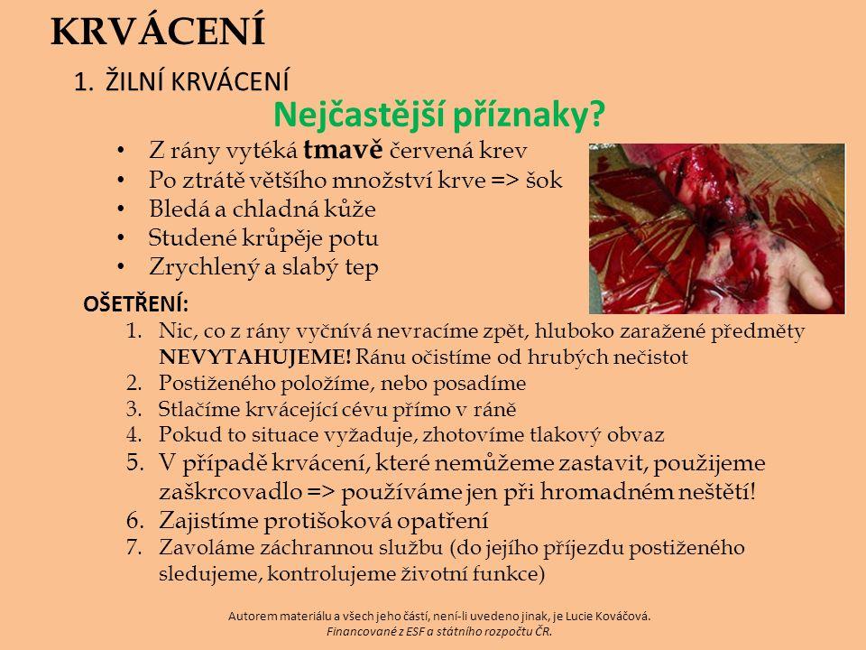 Autorem materiálu a všech jeho částí, není-li uvedeno jinak, je Lucie Kováčová.