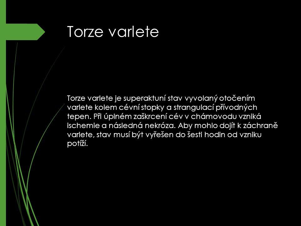 Torze varlete Torze varlete je superaktuní stav vyvolaný otočením varlete kolem cévní stopky a strangulací přívodných tepen.