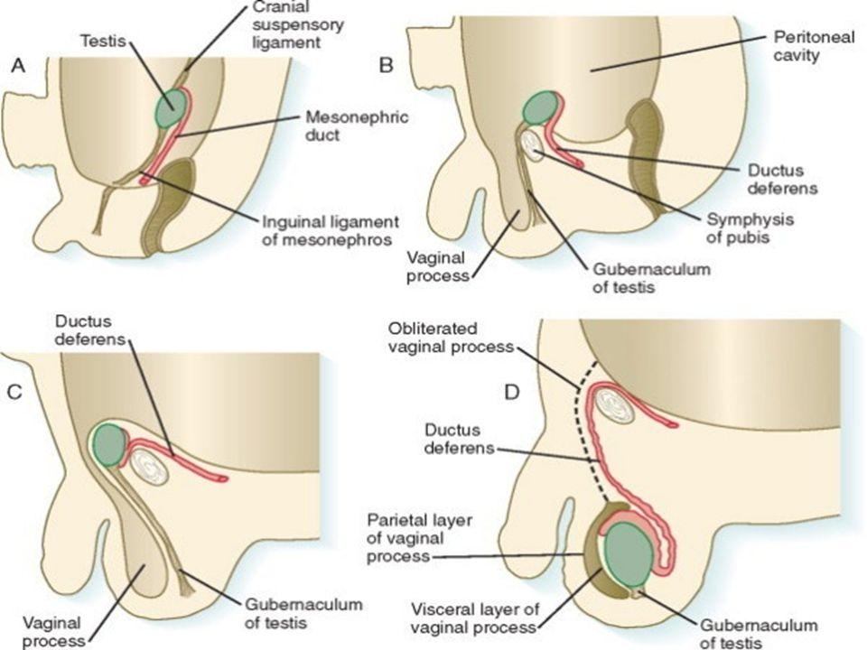 Etiologie a patogeneze ( dle lokalizace )  Intravaginální torze varlete: Tvoří 93% torzí varlete.