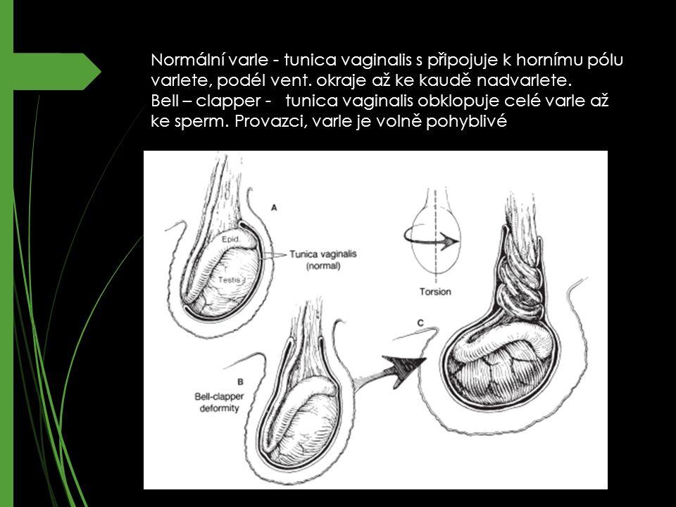 Normální varle - tunica vaginalis s připojuje k hornímu pólu varlete, podél vent.