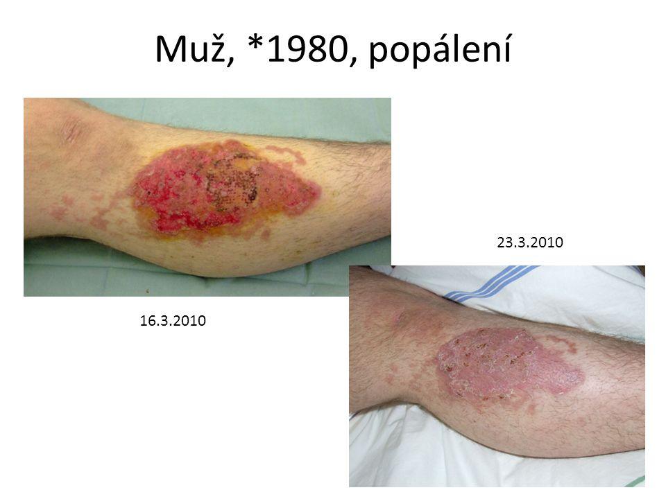 Muž, *1980, popálení 16.3.2010 23.3.2010