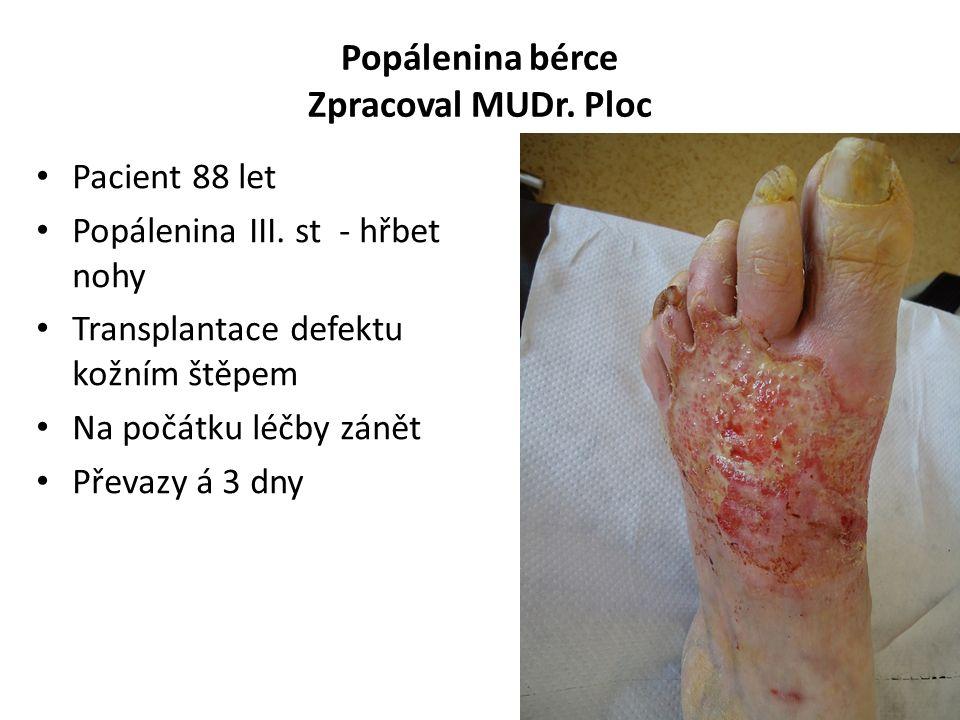 Popálenina bérce Zpracoval MUDr. Ploc Pacient 88 let Popálenina III. st - hřbet nohy Transplantace defektu kožním štěpem Na počátku léčby zánět Převaz