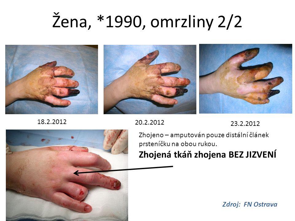 Žena, *1990, omrzliny 2/2 18.2.2012 20.2.2012 23.2.2012 Zdroj: FN Ostrava Zhojeno – amputován pouze distální článek prsteníčku na obou rukou. Zhojená