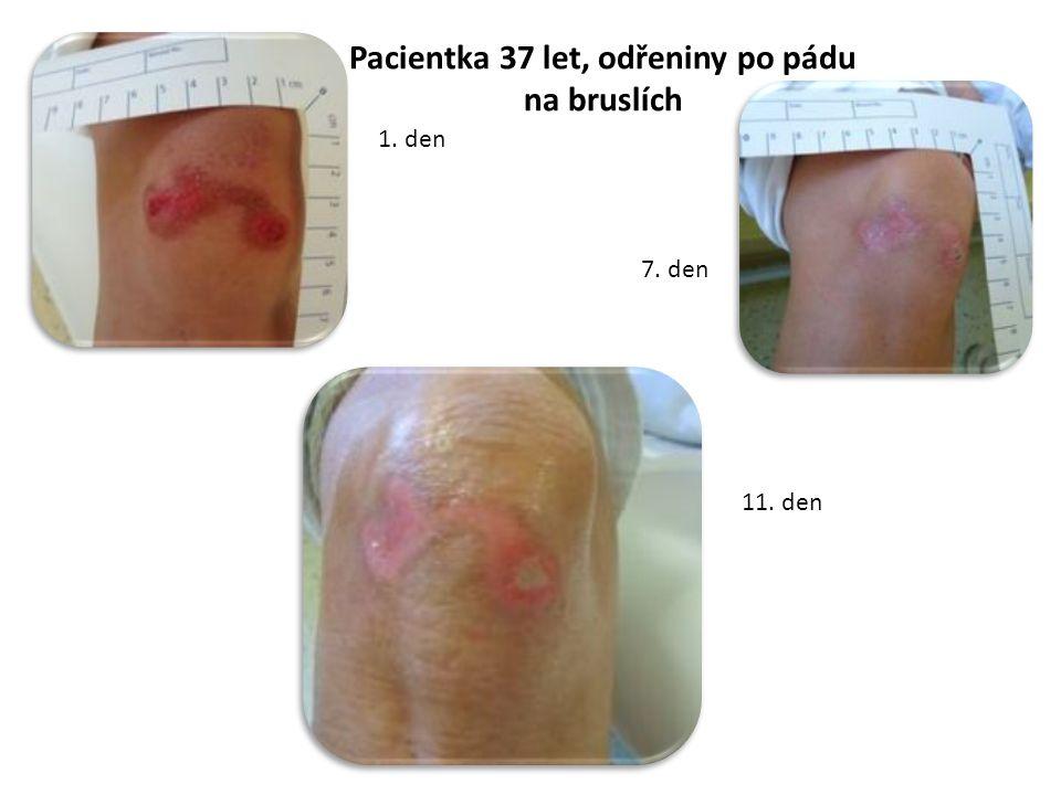 Pacientka 37 let, odřeniny po pádu na bruslích 1. den 7. den 11. den