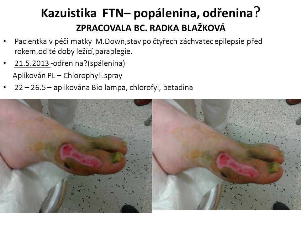 Kazuistika FTN– popálenina, odřenina ? ZPRACOVALA BC. RADKA BLAŽKOVÁ Pacientka v péči matky M.Down,stav po čtyřech záchvatec epilepsie před rokem,od t