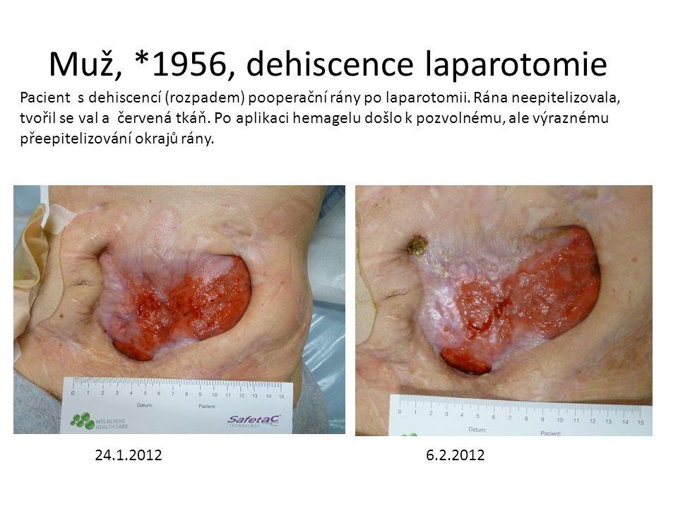 Muž, *1956, dehiscence laparotomie 24.1.20126.2.2012 Pacient s dehiscencí (rozpadem) pooperační rány po laparotomii. Rána neepitelizovala, tvořil se v