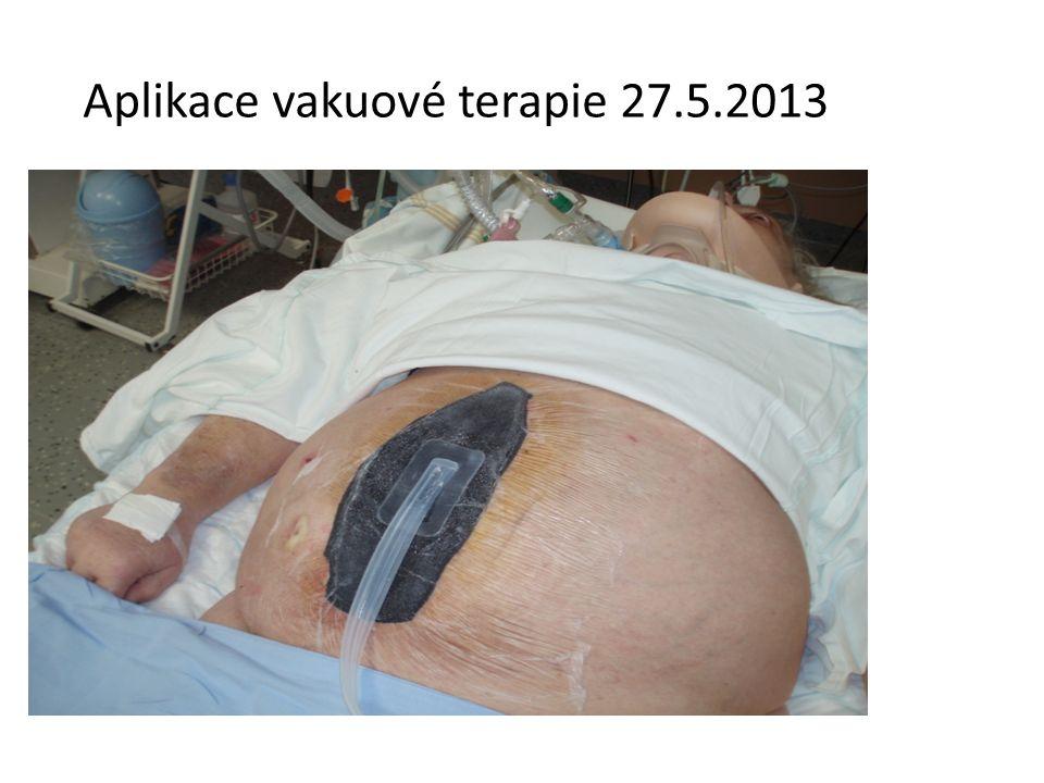 Aplikace vakuové terapie 27.5.2013