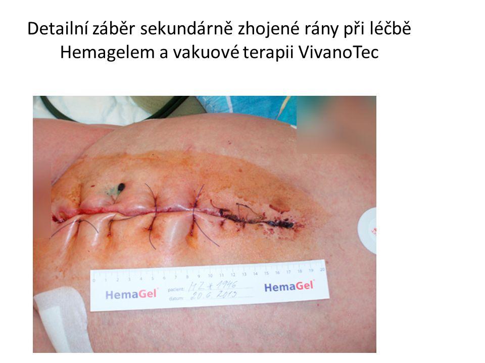 Detailní záběr sekundárně zhojené rány při léčbě Hemagelem a vakuové terapii VivanoTec