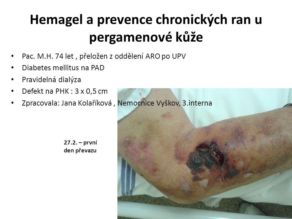Hemagel a prevence chronických ran u pergamenové kůže Pac. M.H. 74 let, přeložen z oddělení ARO po UPV Diabetes mellitus na PAD Pravidelná dialýza Def