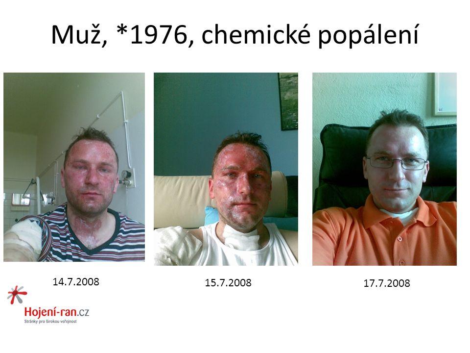 Muž, *1976, chemické popálení 14.7.2008 15.7.2008 17.7.2008