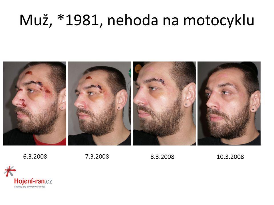 Muž, *1981, nehoda na motocyklu 6.3.20087.3.2008 8.3.200810.3.2008