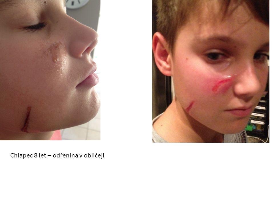 Chlapec 8 let – odřenina v obličeji