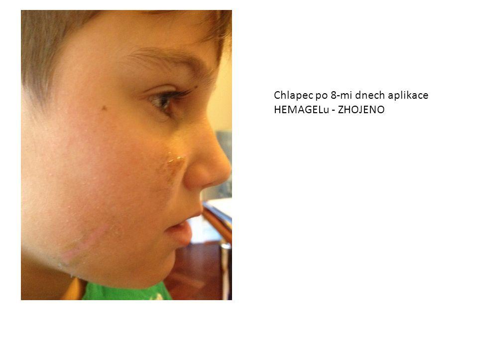 Chlapec po 8-mi dnech aplikace HEMAGELu - ZHOJENO