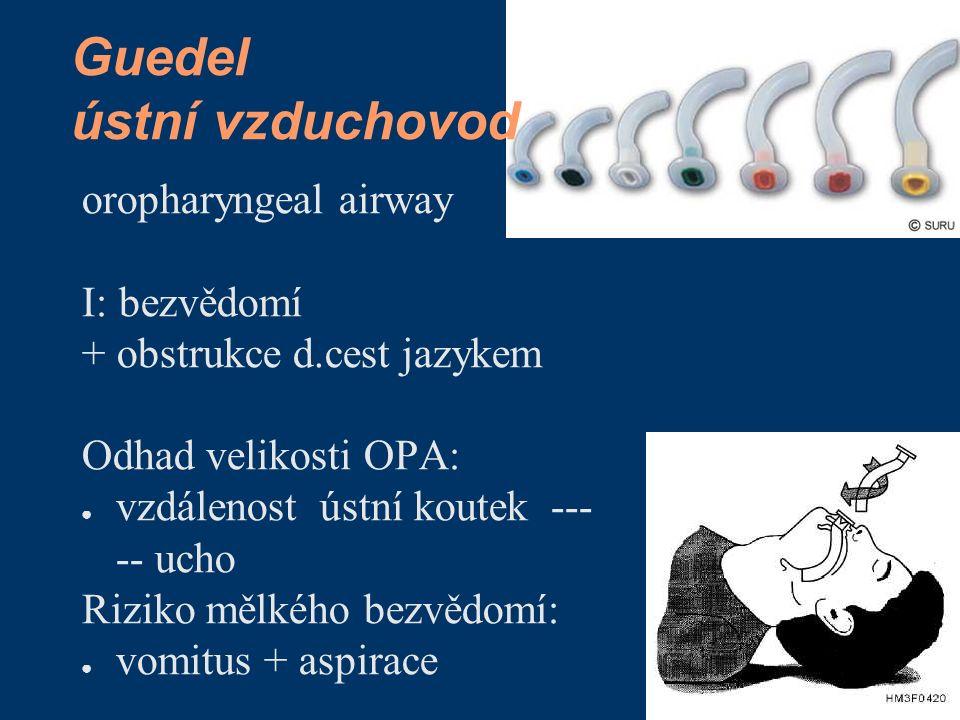 Guedel ústní vzduchovod oropharyngeal airway I: bezvědomí + obstrukce d.cest jazykem Odhad velikosti OPA: ● vzdálenost ústní koutek --- -- ucho Riziko mělkého bezvědomí: ● vomitus + aspirace