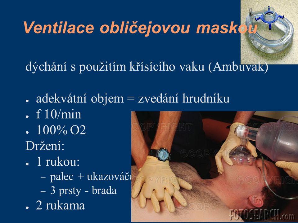 Ventilace obličejovou maskou dýchání s použitím křísícího vaku (Ambuvak) ● adekvátní objem = zvedání hrudníku ● f 10/min ● 100% O2 Držení: ● 1 rukou: – palec + ukazováček.