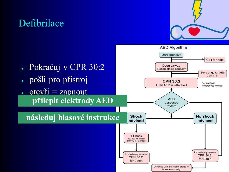 Defibrilace ● Pokračuj v CPR 30:2 ● pošli pro přístroj ● otevři = zapnout přilepit elektrody AED následuj hlasové instrukce