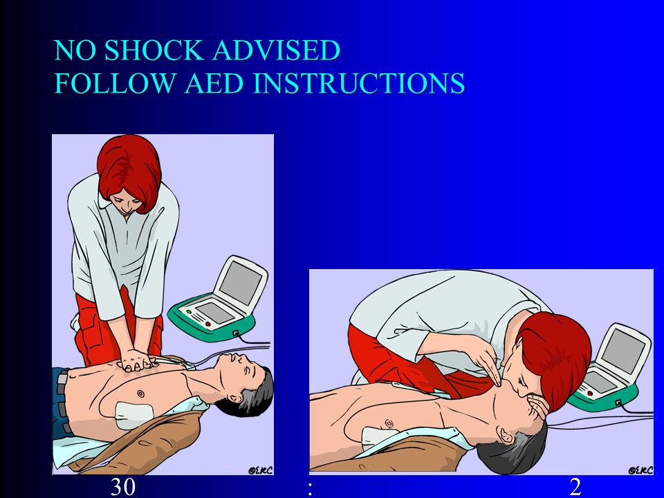 NO SHOCK ADVISED FOLLOW AED INSTRUCTIONS 30 :2 30 :2