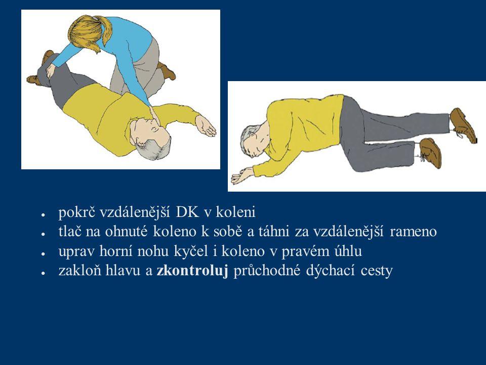 ● pokrč vzdálenější DK v koleni ● tlač na ohnuté koleno k sobě a táhni za vzdálenější rameno ● uprav horní nohu kyčel i koleno v pravém úhlu ● zakloň hlavu a zkontroluj průchodné dýchací cesty