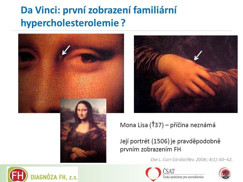 Da Vinci: první zobrazení familiární hypercholesterolemie ? Mona Lisa (†37) – příčina neznámá Její portrét (1506) je pravděpodobně prvním zobrazením F