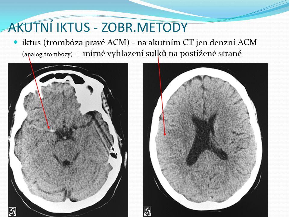 AKUTNÍ IKTUS - ZOBR.METODY iktus (trombóza pravé ACM) - na akutním CT jen denzní ACM (analog trombózy) + mírné vyhlazení sulků na postižené straně