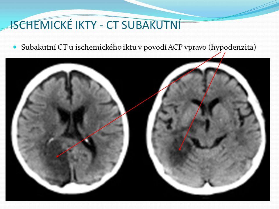 ISCHEMICKÉ IKTY - CT SUBAKUTNÍ Subakutní CT u ischemického iktu v povodí ACP vpravo (hypodenzita)