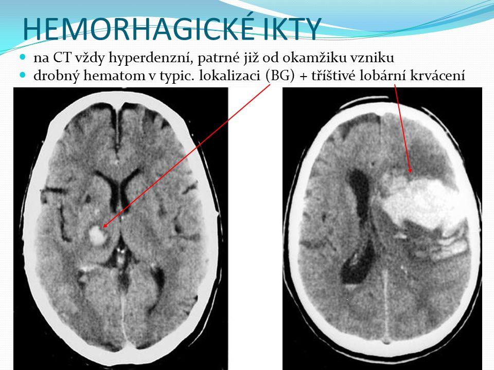 HEMORHAGICKÉ IKTY na CT vždy hyperdenzní, patrné již od okamžiku vzniku drobný hematom v typic. lokalizaci (BG) + tříštivé lobární krvácení