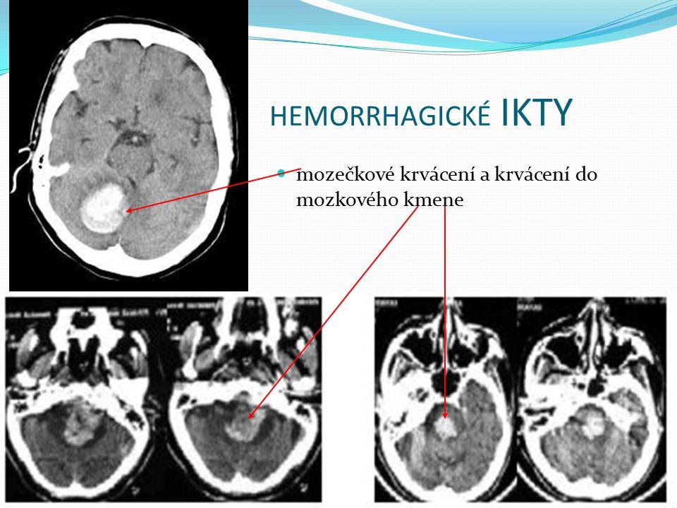 HEMORRHAGICKÉ IKTY mozečkové krvácení a krvácení do mozkového kmene