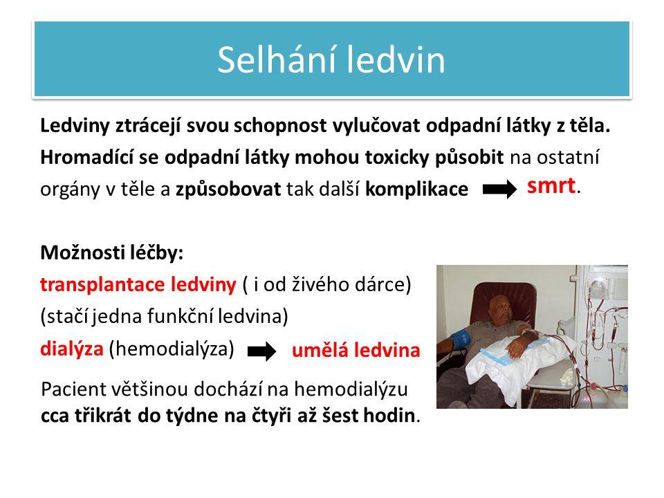 Selhání ledvin Ledviny ztrácejí svou schopnost vylučovat odpadní látky z těla.