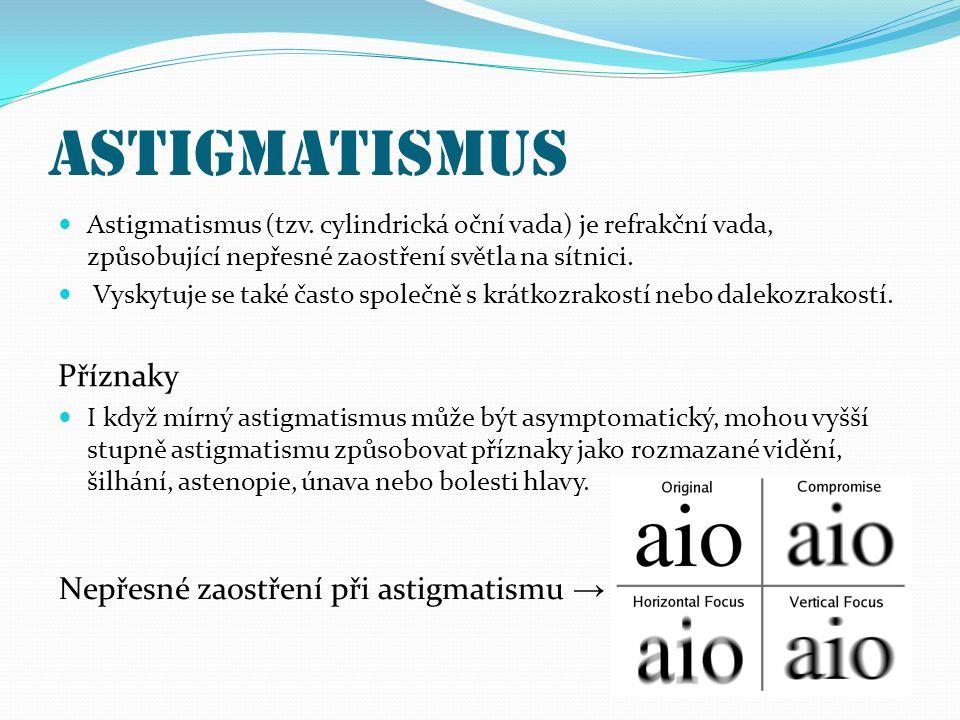 Astigmatismus Astigmatismus (tzv. cylindrická oční vada) je refrakční vada, způsobující nepřesné zaostření světla na sítnici. Vyskytuje se také často