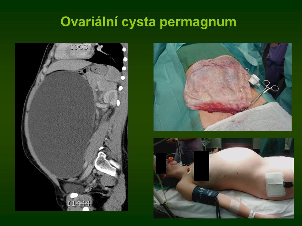 Ovariální cysta permagnum