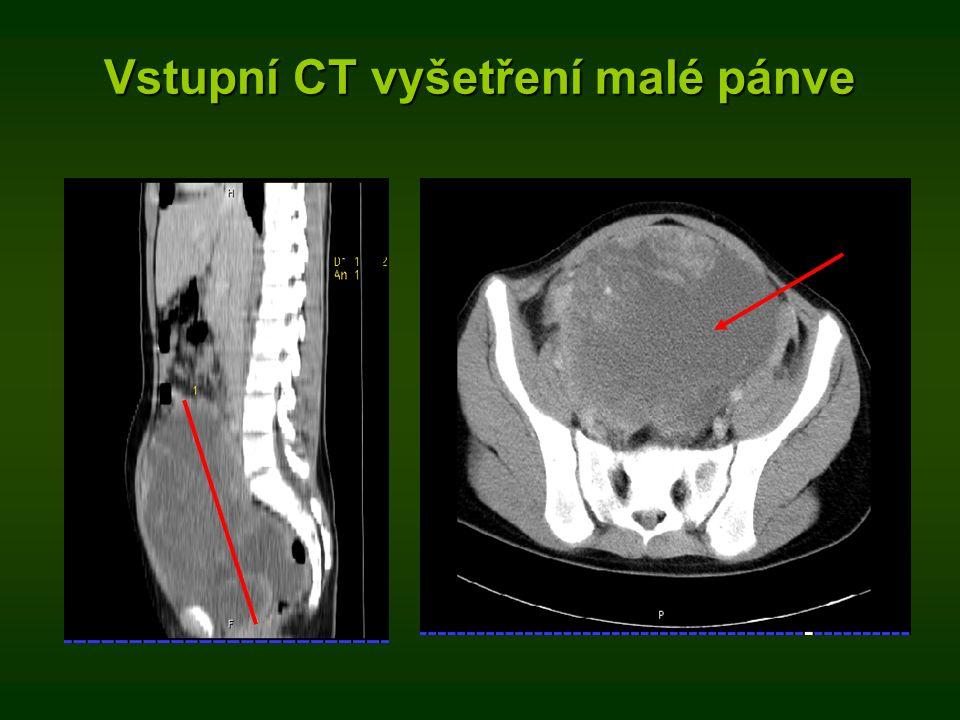 Vstupní CT vyšetření malé pánve