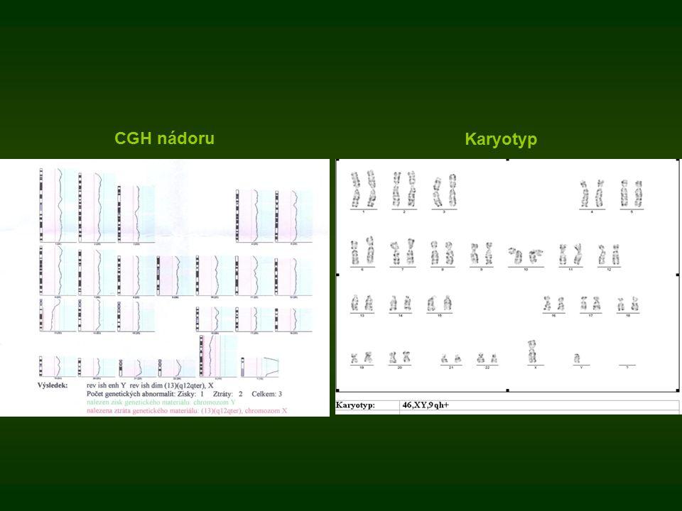 CGH nádoru Karyotyp