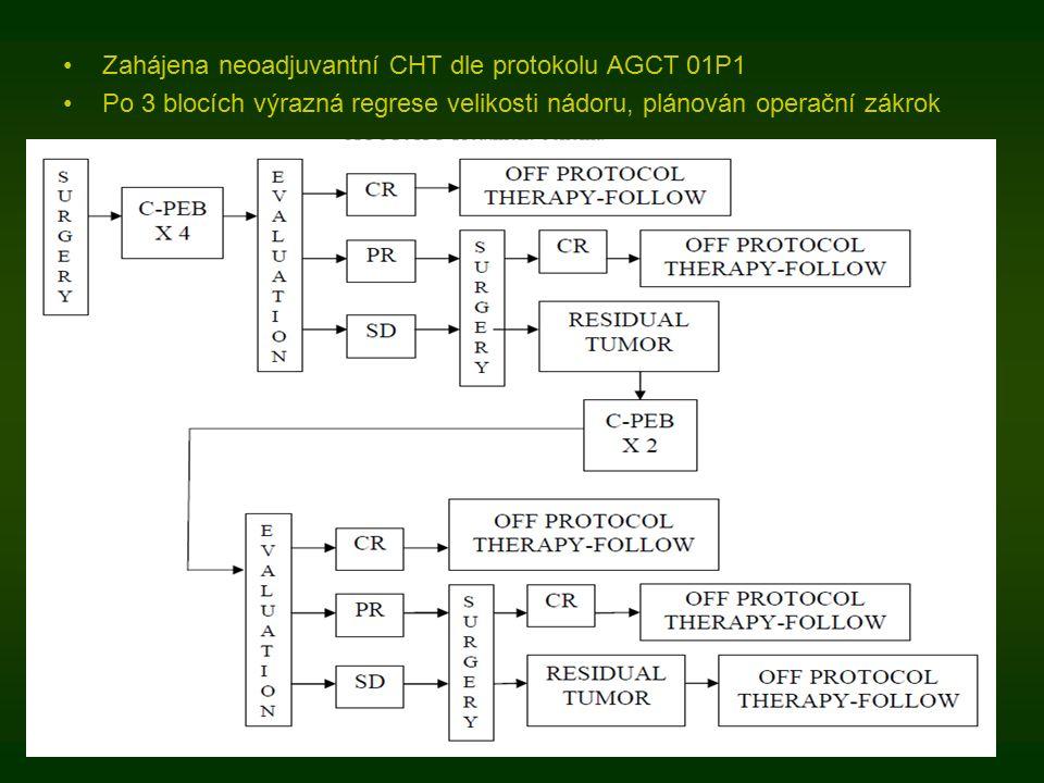 Zahájena neoadjuvantní CHT dle protokolu AGCT 01P1 Po 3 blocích výrazná regrese velikosti nádoru, plánován operační zákrok