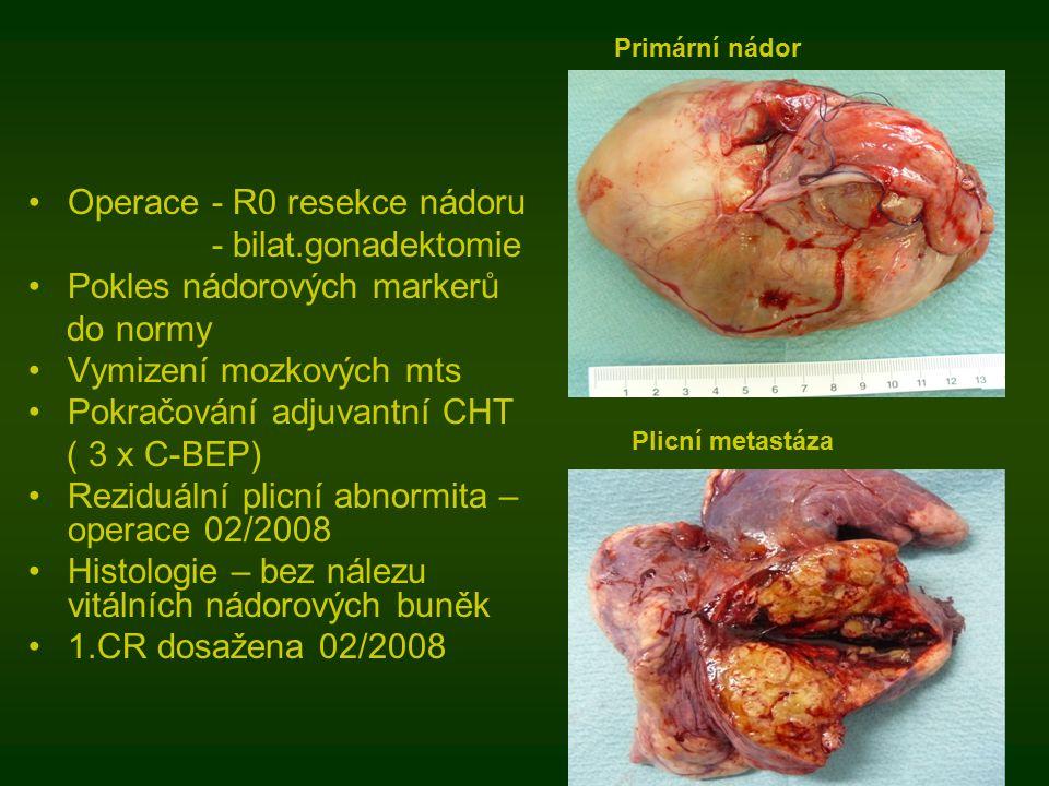 Operace - R0 resekce nádoru - bilat.gonadektomie Pokles nádorových markerů do normy Vymizení mozkových mts Pokračování adjuvantní CHT ( 3 x C-BEP) Reziduální plicní abnormita – operace 02/2008 Histologie – bez nálezu vitálních nádorových buněk 1.CR dosažena 02/2008 Primární nádor Plicní metastáza