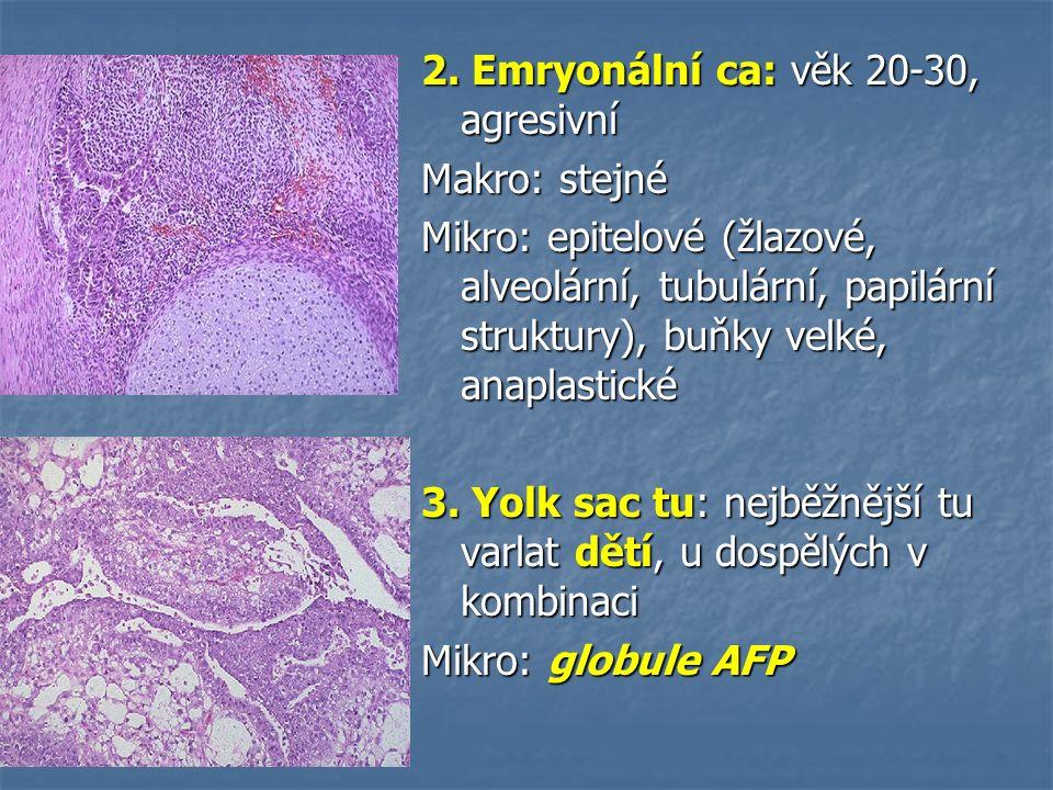 2. Emryonální ca: věk 20-30, agresivní Makro: stejné Mikro: epitelové (žlazové, alveolární, tubulární, papilární struktury), buňky velké, anaplastické