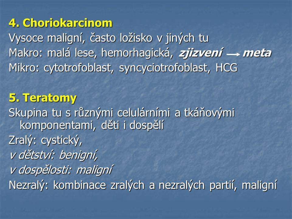 4. Choriokarcinom Vysoce maligní, často ložisko v jiných tu Makro: malá lese, hemorhagická, zjizvení meta Mikro: cytotrofoblast, syncyciotrofoblast, H