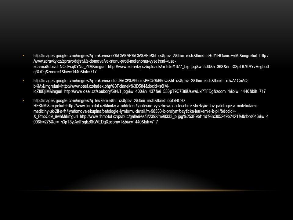 http://images.google.com/imgres?q=rakovina+k%C5%AF%C5%BEe&hl=cs&gbv=2&tbm=isch&tbnid=sHdYtHOxnroEyM:&imgrefurl=http:/ /www.zdravky.cz/zpravodajstvi/z-