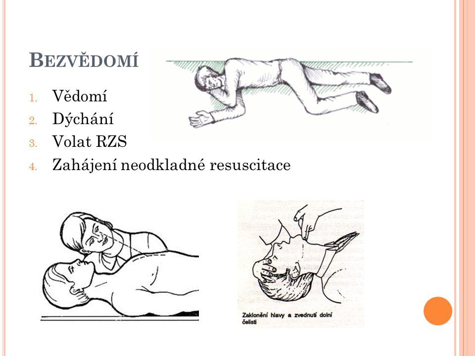 B EZVĚDOMÍ 1. Vědomí 2. Dýchání 3. Volat RZS 4. Zahájení neodkladné resuscitace
