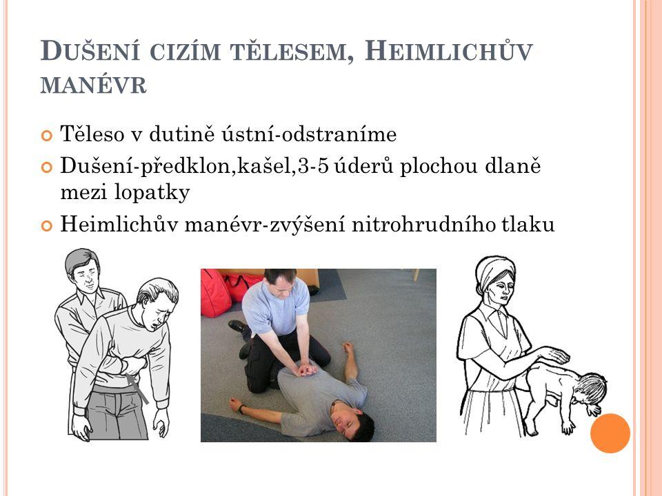 D UŠENÍ CIZÍM TĚLESEM, H EIMLICHŮV MANÉVR Těleso v dutině ústní-odstraníme Dušení-předklon,kašel,3-5 úderů plochou dlaně mezi lopatky Heimlichův manévr-zvýšení nitrohrudního tlaku