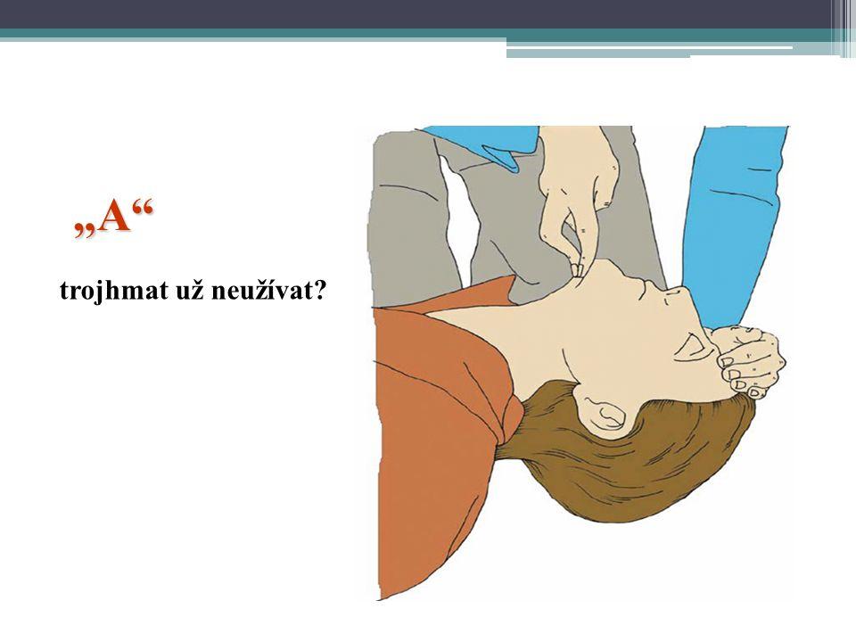 Diagnostika přítomnosti spontánního dýchání Dtto = look, listen and feel Ne > 10 sec.